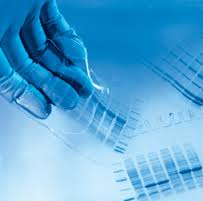 การแยกโปรตีนโดยวิธีเจลอิเลคโตรโฟรีซีส (Gel electrophoresis of protein)